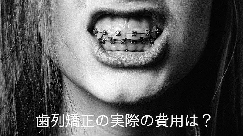 歯列矯正の実際の費用は?